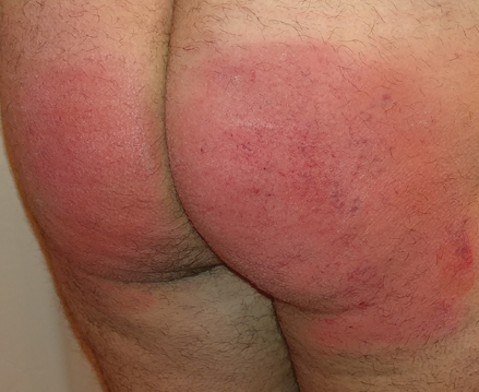 spanking aftermath