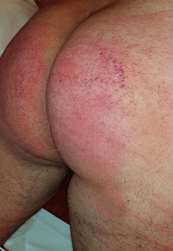 fm spanked butt
