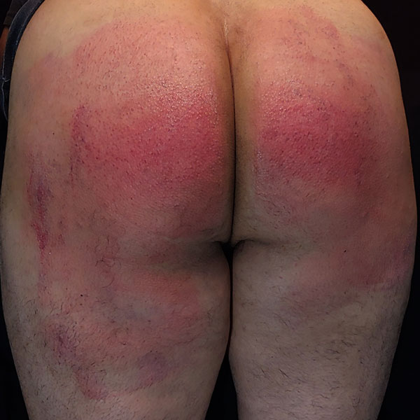 well spanked butt